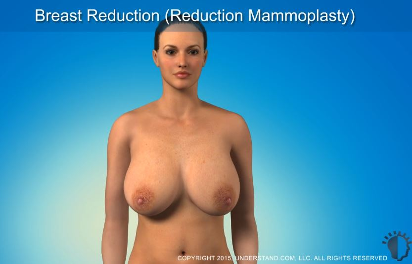 The image is of a woman with large breasts.  You have to click on the image to watch the video.