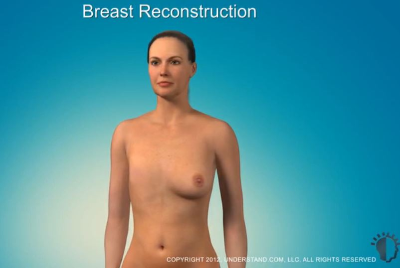 The image is of a woman with one breast removed.  You have to click on the image to watch the video.